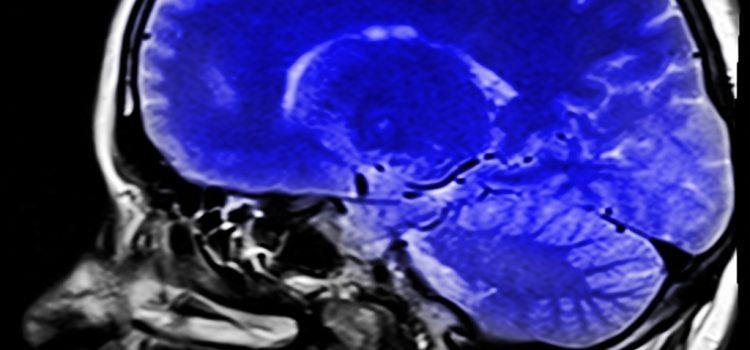 Egyes agyterületek gyulladása is szerepet játszhat az autizmus kialakulásában