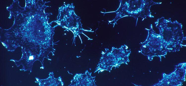Génszerkesztéssel állították meg az egyik legagresszívebb mellrák sejtjeinek terjedését